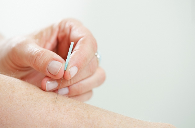 An acupuncturist at Jing River Acupuncture & Traditional Medicine in Edina inserts a needle into an arm.